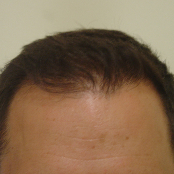 After Hair Transplant 01 - 2017