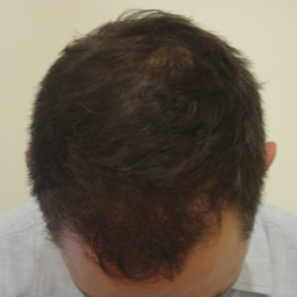 After Hair Transplant 05 - 2017