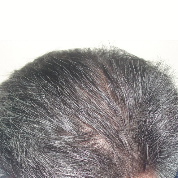 After Hair Transplant